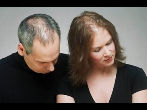 Treatment options for Baldness